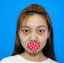广州美莱整形热玛吉除皱案例  年轻十岁的秘密