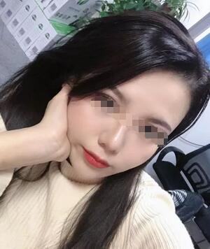 面部年轻化医生:武汉乐美整形汪文娟的埋线提升术
