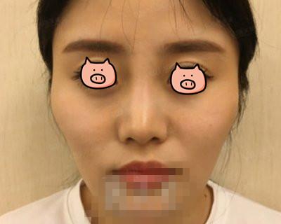 上海华美整形颧骨整形案例 V字脸的我颜值上去了哈哈