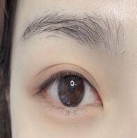 上海薇琳整形纹美瞳线案例 手术很轻松