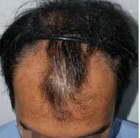 长春肤康同济医院头发种植案例 在正好的年纪选择了植发
