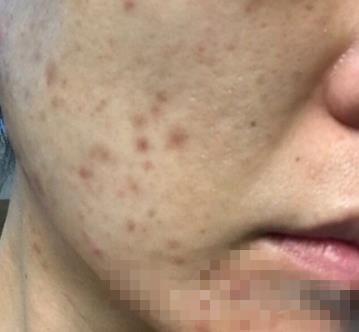 苏州圣爱整形激光祛黄褐斑案例 肌肤恢复如婴儿一般光滑嫩丽