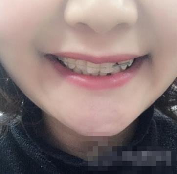 长沙美奥整形牙齿矫正案例 一口洁白整齐的牙齿出炉啦嘿嘿嘿