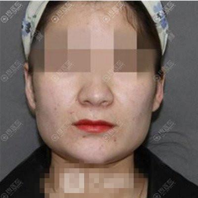 上海港华整形穆雄铮磨骨案例 术后脸变小了诶