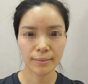 武汉匠歆天巧整形医院邓裴医生的自体肋软骨隆鼻效果展示