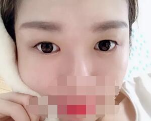 【双眼皮医生攻略】成都艺星医美蔡灵医生的双眼皮效果