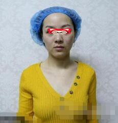 洛阳亚峰整形激光除皱案例 健身+医美让我保持好状态