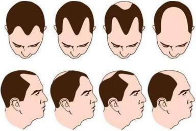 为什么很多人都是前额部分先掉头发?植发后发际线还会往后移吗?