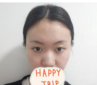 成都华人医联丽元整形鼻部综合术案例 术后15天拆线 美鼻弧度惊喜