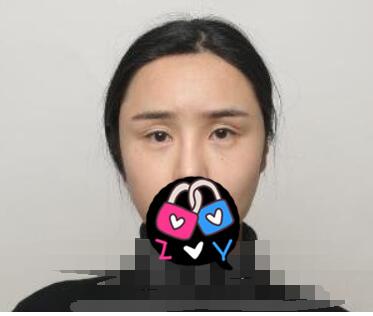 北京愛斯克整形韓勛醫生修復雙眼皮案例 術后雙眼恢復一個月好看