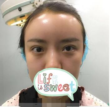 沈陽杏林整形張瑩瑩醫生自體脂肪填充額頭案例 術后額頭飽滿好看