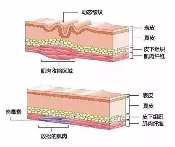 肉毒素与玻尿酸在抗老界,到底是谁能站在C位?