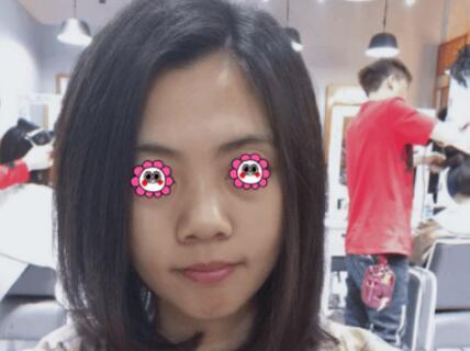 北京协和整形韩新鸣医生激光美肤案例 术后发现皮肤真的好很多了
