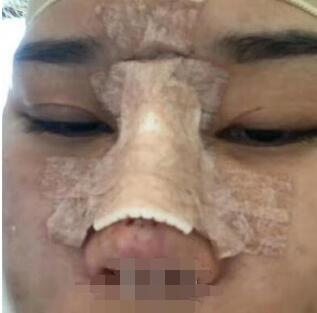北京协和整形尤建军医生鼻部综合术案例 术前术后变化效果过程