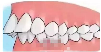 广州时光整形侯振杰医生牙齿矫正案例 术后牙齿恢复整个状态分享