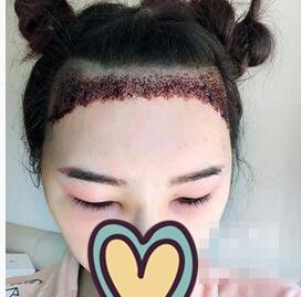 广州华美整形头发种植案例
