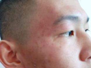 广州美莱整形祛痘案例 皮肤不再坑坑洼洼