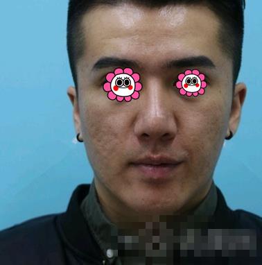 北京八大处整形王宝玺痤疮案例 面部的痤疮消失了面部白嫩洁亮