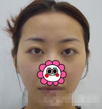 北京八大处整形面部脂肪填充案例 面部饱满轮廓分明超好看