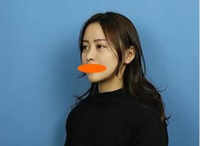 杭州格莱美整形陈笑鼻综合修复案例 术后性感又知性美的感觉