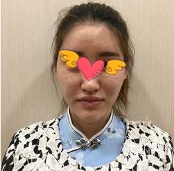 广州美莱整形自体脂肪面部填充案例 肉肉的才有青春活力的感觉嘛