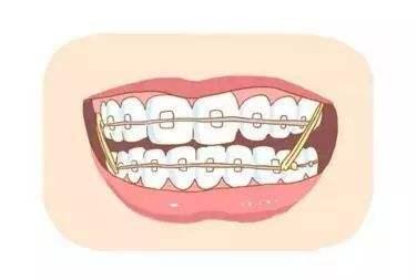 好神奇!为什么戴上牙齿矫正器就能让牙齿变齐?