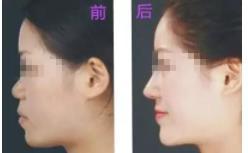 动过的鼻子,能辨别得出来么?