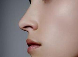 鼻翼肥大怎么办?怎样才能缩小鼻翼?