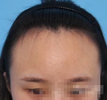 杭州第一人民整形发际线种植案例 头发浓密感人开心!