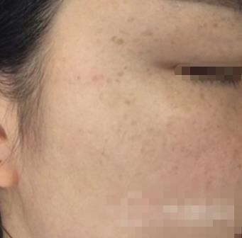 河北省眼科整形激光祛斑案例 脸蛋像婴儿脸一样嫩嫩的