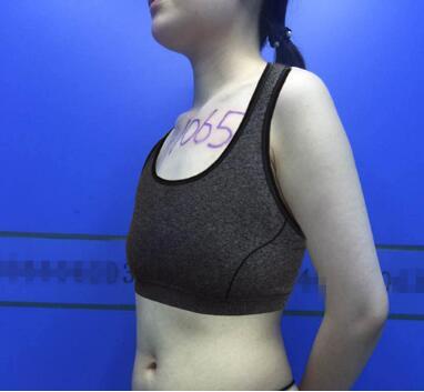 北京英煌整形梁耀婵医生自体脂肪隆胸案例 术后无法抵挡性感魅力