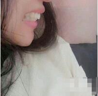 北京雅靓整形托槽牙齿矫正案例 医生说戴个一年左右更固定些