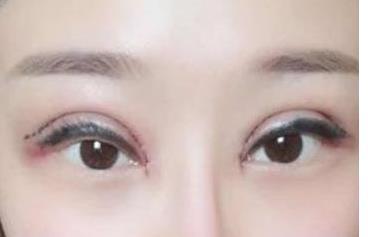济南海峡整形双眼皮案例