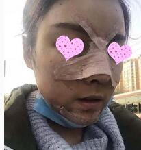 佛山美莱整形医院做鼻综合案例 摄影师说我的五官很立体