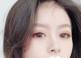 深圳阳光整形双眼皮案例