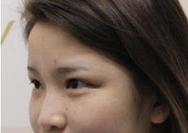 西安西美整形隆鼻案例