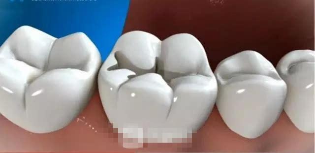 光固化复合树脂补牙