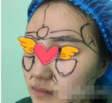 武汉爱美汇整形面部吸脂案例 半年时间,注意补水,皮肤白嫩光滑