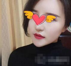 武汉爱美汇整形面部吸脂案例