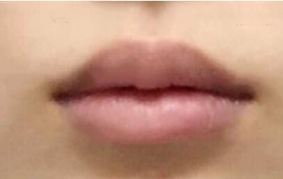 长沙天一整形谢磊医生上唇M唇塑形案例 术后唇型变得美美哒 赞!