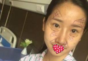 上海时光整形面部脂肪填充案例 轻松拥有V型脸