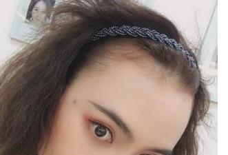 南京华美整形植发案例 一站式帮您解决头发稀少