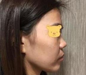 长沙美莱整形鼻综合手术案例 拯救矮塌鼻 精致侧颜有魔力