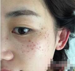 武汉富康激光整形医院做激光祛斑案例效果 眼周围的雀斑没有啦