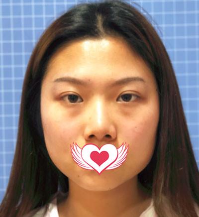 苏州康美整形张悦迪面部吸脂案例 术后五官变得立体了.耐看了