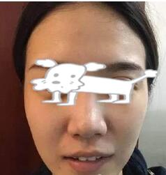 北京联合丽格整形脂肪面部填充案例 因美容后变美,所以活力满满