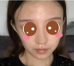 上海九院做鼻子缩小案例 告别大鼻子的我也变漂亮了