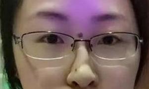 上海伊莱美整形点痣案例 让面部无瑕疵