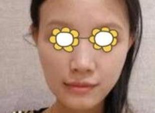 昆明梦想整形面部脂肪填充案例 让你拥有光滑饱满的脸颊