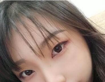 广州美莱整形双眼皮手术案例 术后3个月朋友们都夸我的眼睛好看